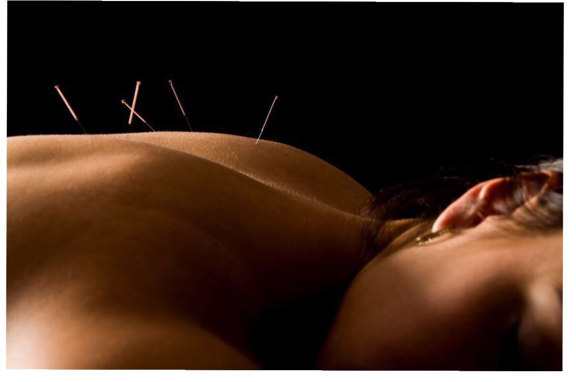 Acupuncture!  The amazing health benefits.